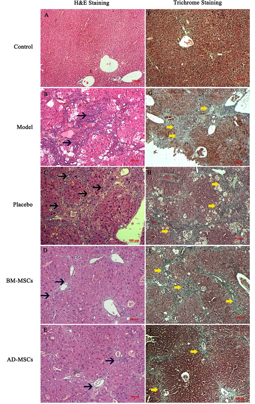 Figure 5 H&E and Masson's trichrome staining at 21 days after treatment
