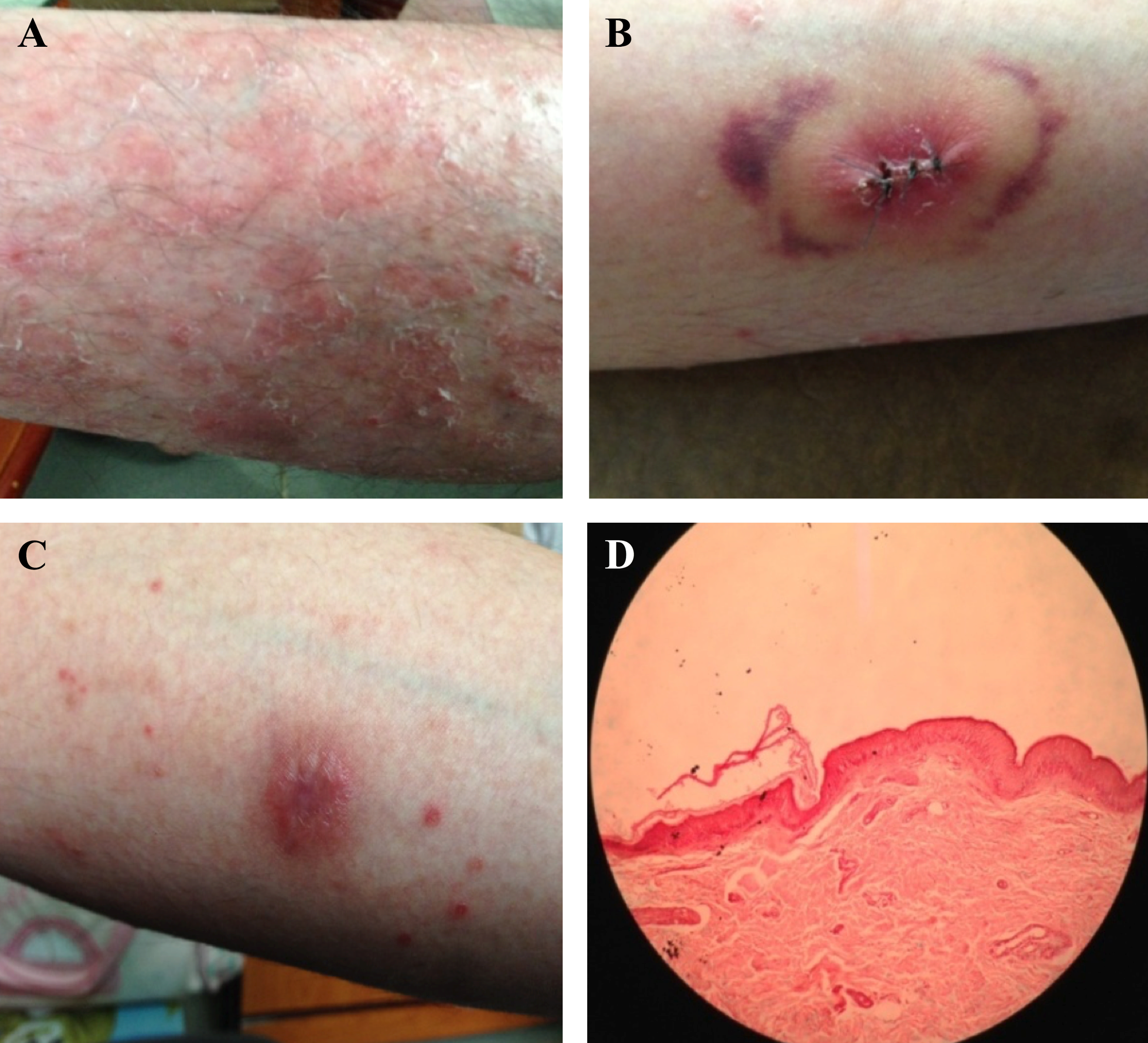 Figure 1 Psoriatic lesions on limbs and histology of guttate psoriatic patient