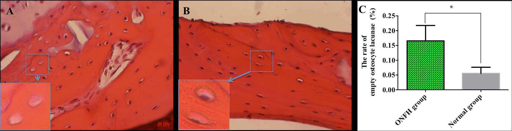 Figure 2 Histology of the bone (H&E staining)