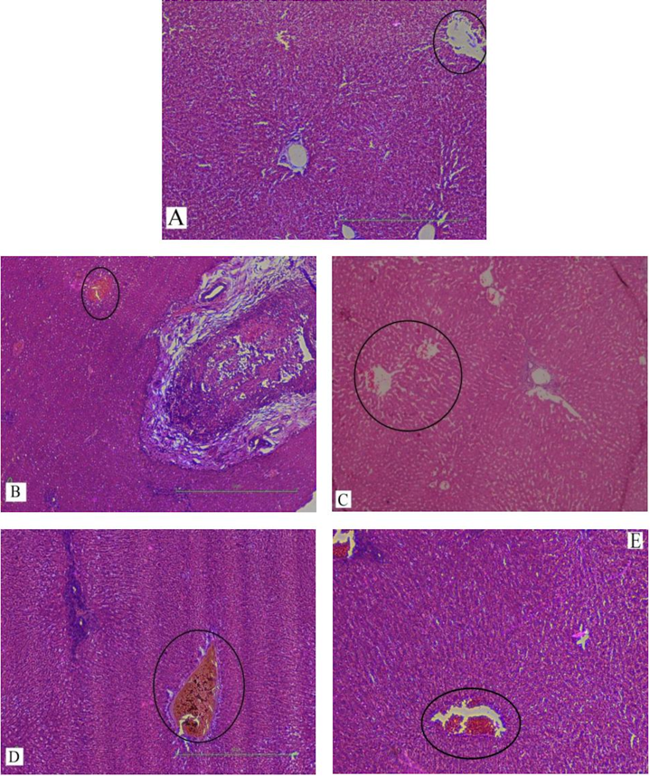 Figure 5 H&E staining of liver sections
