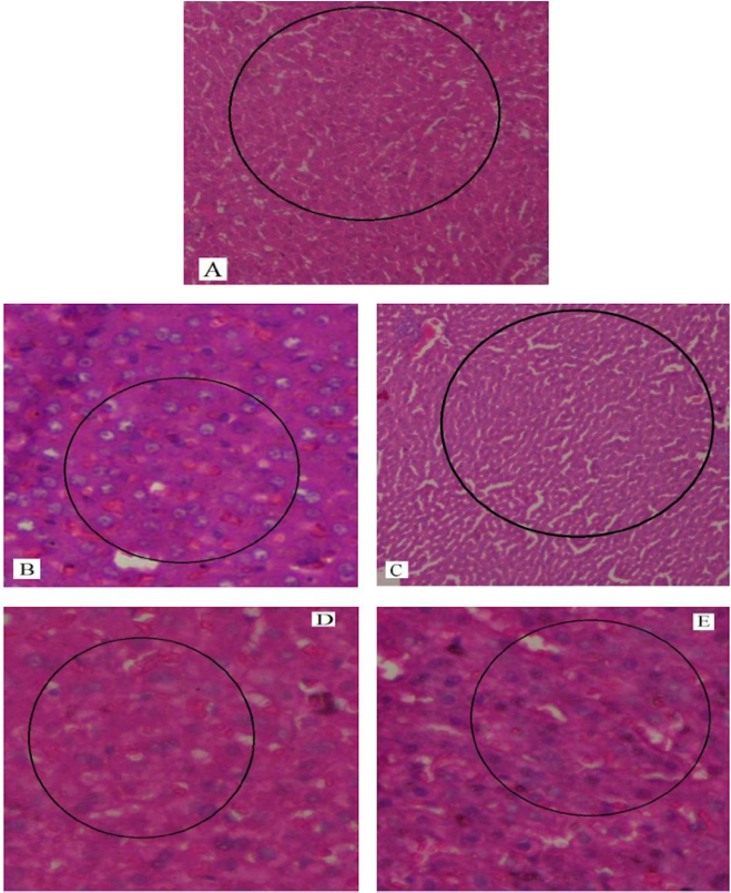 Figure 6 H&E staining of liver sections