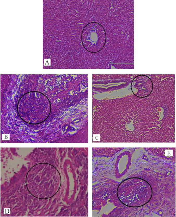 Figure 7 H&E staining of liver sections