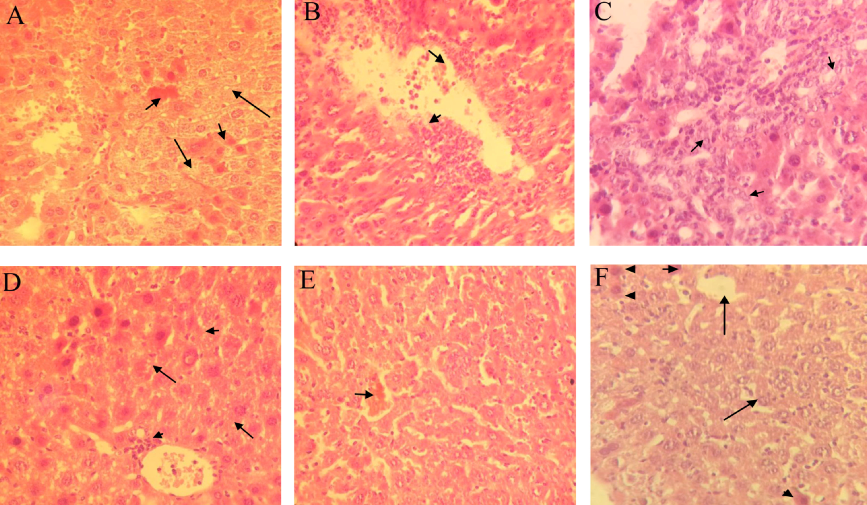 Figure 5 Representative photomicrographs of hematoxylin- and eosin-stained sections of mouse livers