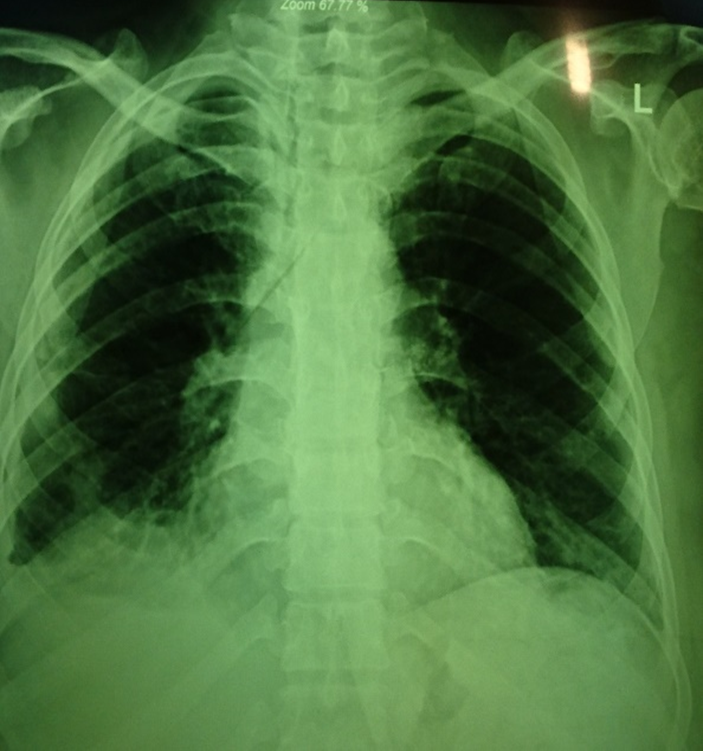 Figure 1 Chest x-ray of left lung before treatment