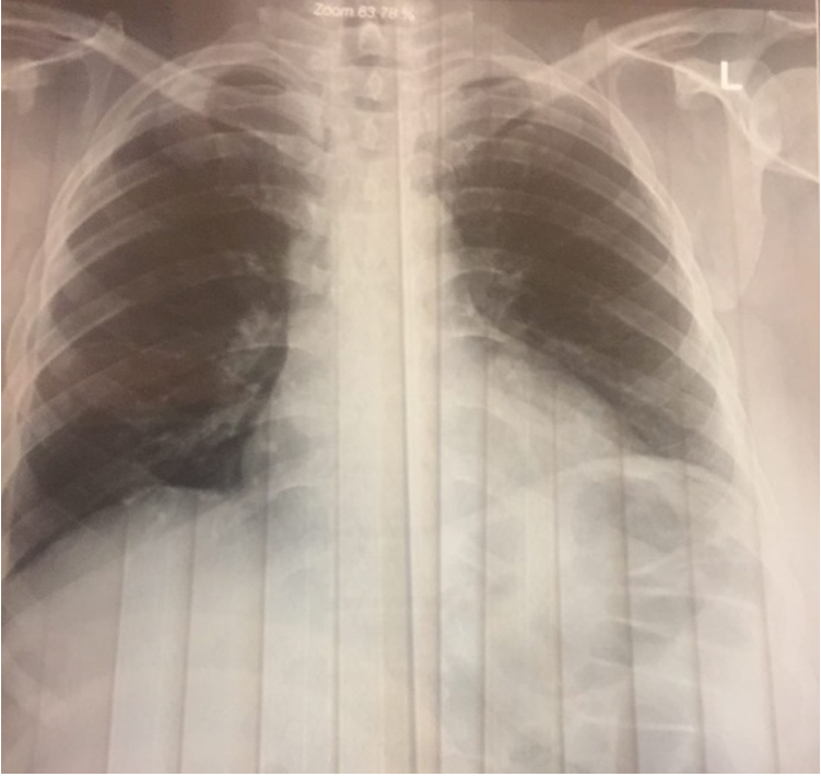 Figure 2 Chest x-ray of left lung after treatment