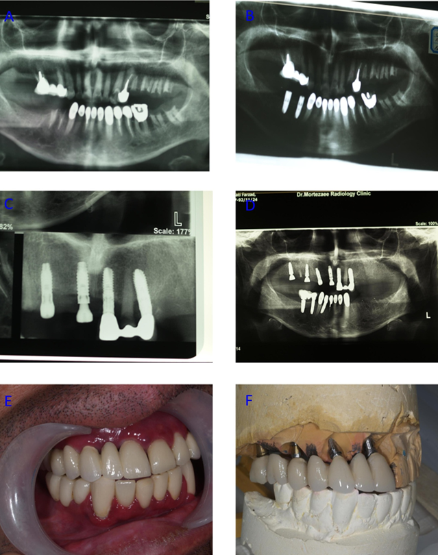 Figure 3 Photography/Radiography