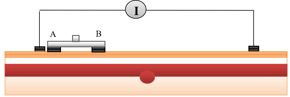 Figure 17 The movement of electrodes on blood vessel containing plaque